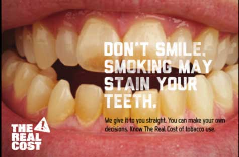 tobacco stains teeth